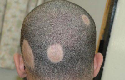 ریزش مو علامت چیست