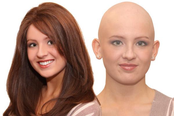 درمان آلوپسی با ترمیم مو